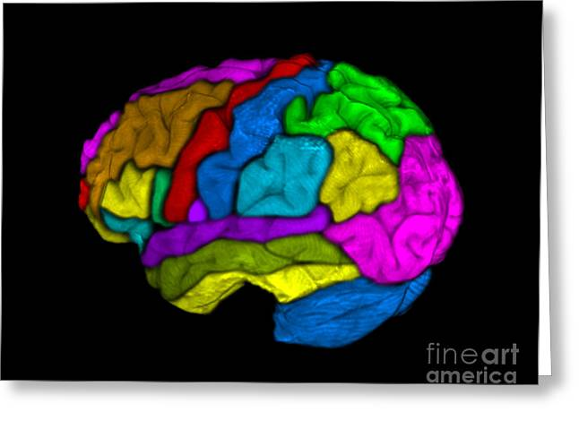 Mri Of Normal Brain Greeting Card by Living Art Enterprises