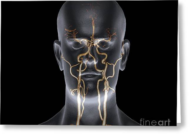 Wilis Greeting Cards - Neck And Head Arteries, Mra Scan Greeting Card by Zephyr