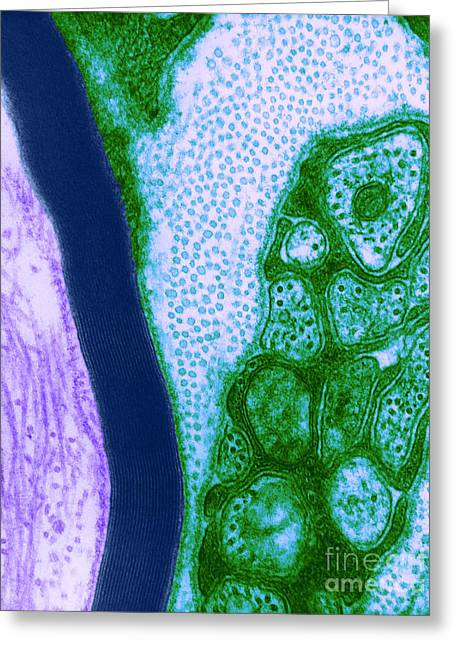 Microscopies Greeting Cards - Nerve Cell, Tem Greeting Card by David M. Phillips