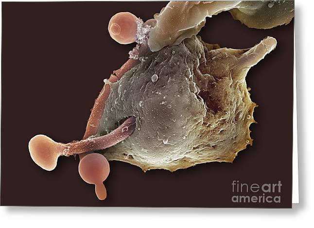 Engulfing Greeting Cards - Neutrophil Engulfing Thrush Fungus, Sem Greeting Card by Spl