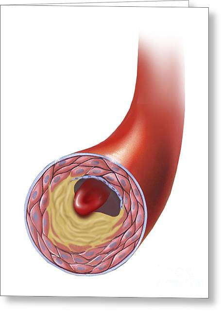Single-celled Digital Greeting Cards - Normal Artery Compared To Plaque Greeting Card by TriFocal Communications