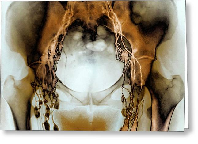 Normal Pelvic Lymphatic System Greeting Card by Zephyr