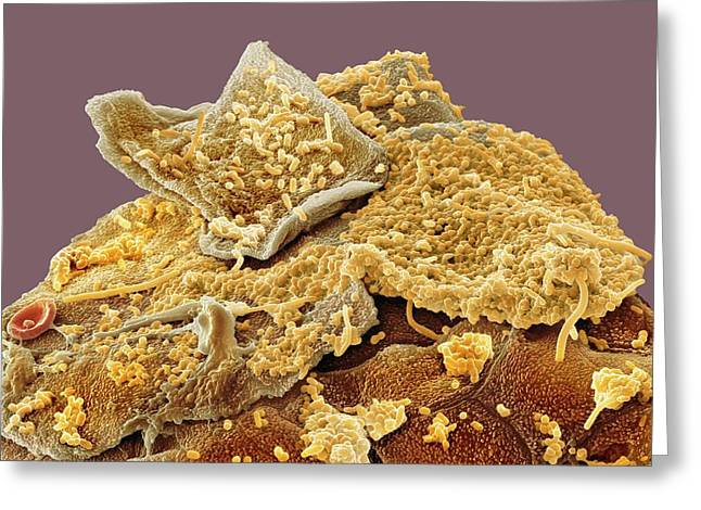 Oral Bacteria Greeting Card by Steve Gschmeissner