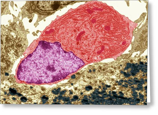 Osteoclast Greeting Card by Steve Gschmeissner