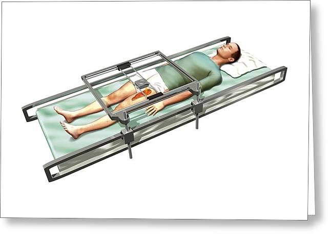 Patient In 3d Skin Printer Greeting Card by Henning Dalhoff