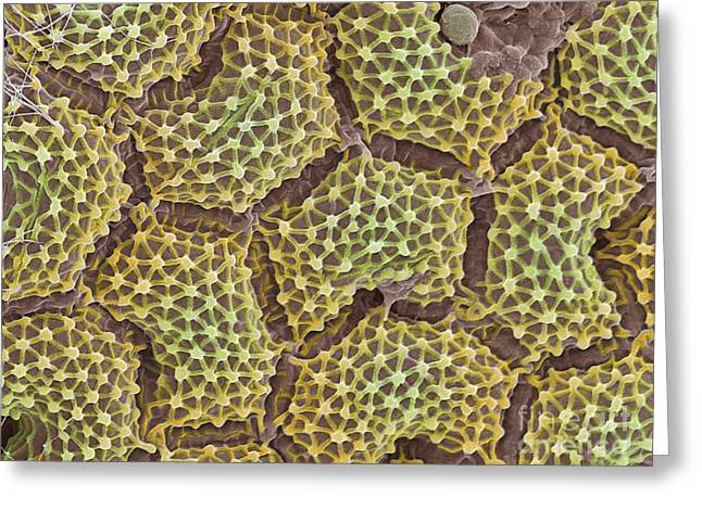 Algal Greeting Cards - Pediastrum Alga, Colored Sem Greeting Card by Spl