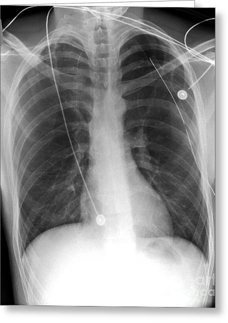 Drain Greeting Cards - Pneumothorax Treatment, X-ray Greeting Card by Du Cane Medical Imaging Ltd.