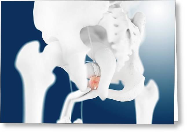Prostate Gland Greeting Card by Springer Medizin
