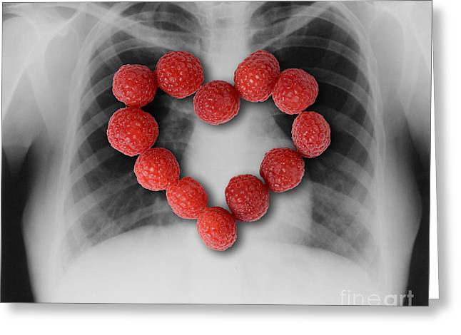 Healthy Concept Greeting Cards - Raspberries, Heart-healthy Fruit Greeting Card by Gwen Shockey