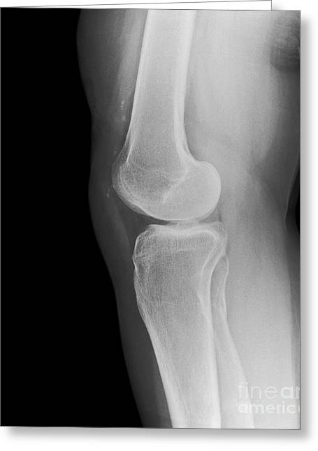 Removed Greeting Cards - Removed Kneecap, X-ray Greeting Card by Science Photo Library