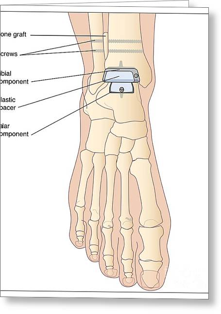 Replacing Greeting Cards - Replacement Ankle Joint, Artwork Greeting Card by Peter Gardiner