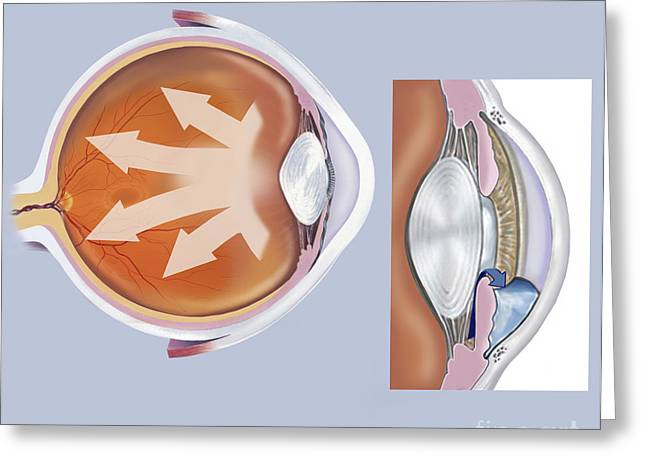 Retina Of Eye With Glaucoma Greeting Card by TriFocal Communications