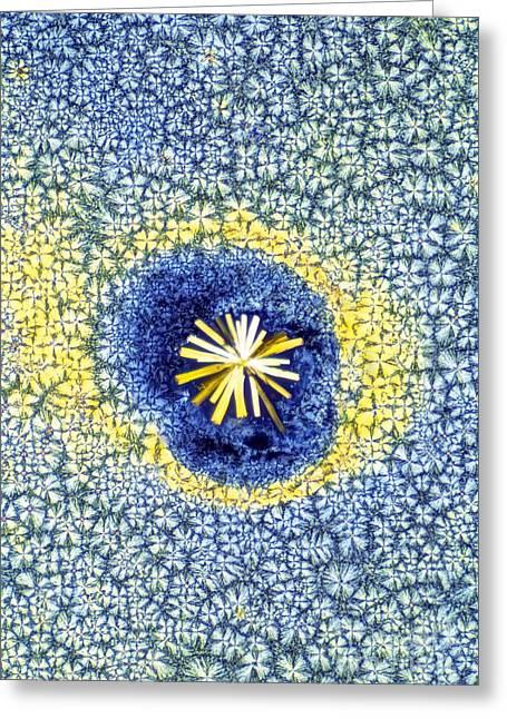 Carotene Greeting Cards - Retinoic Acid Crystal Light Micrograph Greeting Card by David Parker