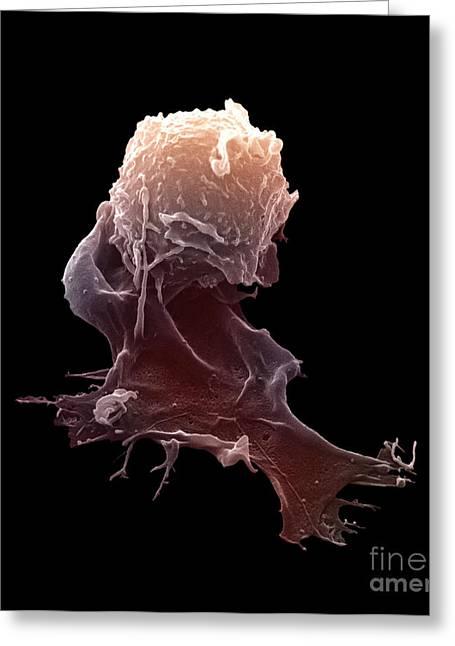Sem Greeting Cards - Sem Of A Macrophage Greeting Card by David M. Phillips