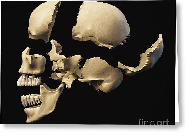 Zygomatic Bones Greeting Cards - Side View Of Human Skull With Parts Greeting Card by Leonello Calvetti