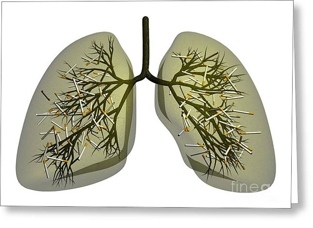 Smoker Greeting Cards - Smokers Lung, Conceptual Artwork Greeting Card by Thomas Fester