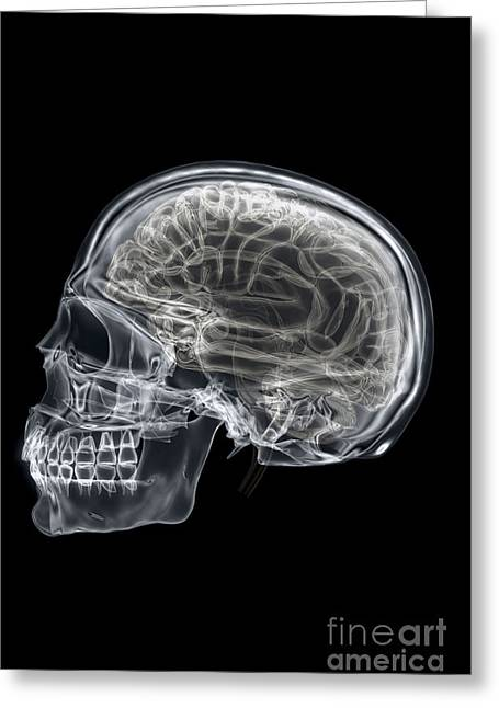 Cerebral Cortex Greeting Cards - The Skull And Brain Greeting Card by Science Picture Co