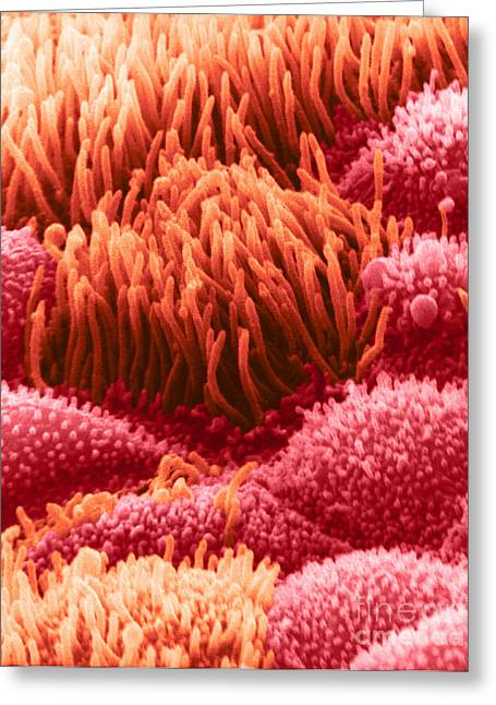 Goblet Greeting Cards - Trachea Lining Sem Greeting Card by David M. Phillips