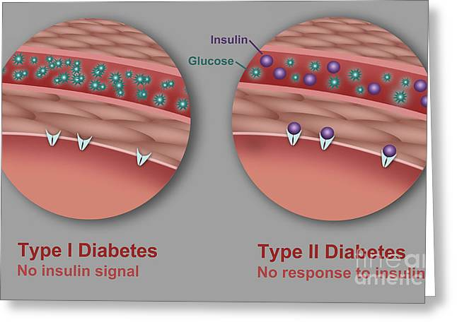 Glucose Greeting Cards - Type 1 And Type 2 Diabetes Greeting Card by Gwen Shockey