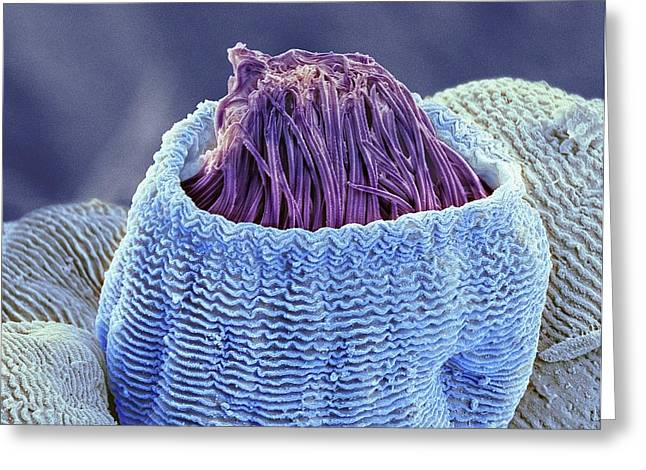 Vorticella Protozoan Greeting Card by Steve Gschmeissner