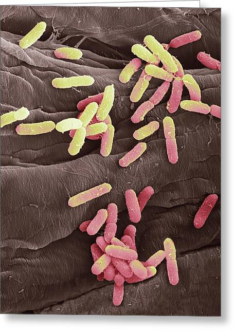E. Coli Bacteria Greeting Card by Steve Gschmeissner