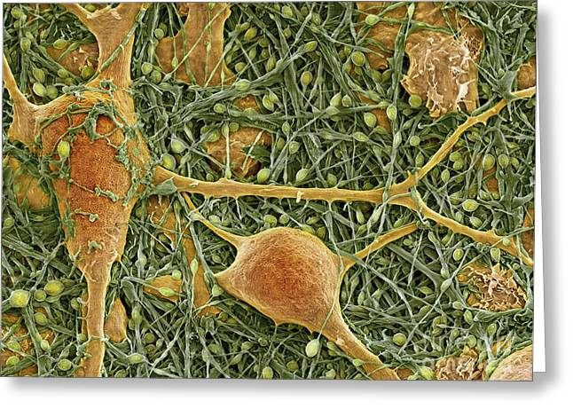 Neuroglia Cell Greeting Cards - Nerve Cells And Glial Cells, Sem Greeting Card by Thomas Deerinck, NCMIR