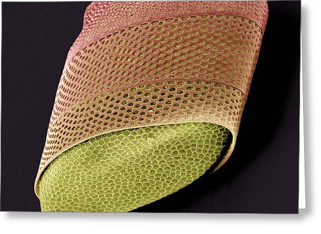 Algae Greeting Cards - Diatom Alga, Sem Greeting Card by Steve Gschmeissner