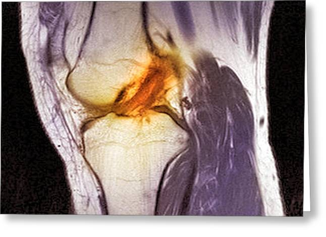 Tears Greeting Cards - Anterior Cruciate Ligament Tear, Ct Scan Greeting Card by Du Cane Medical Imaging Ltd.