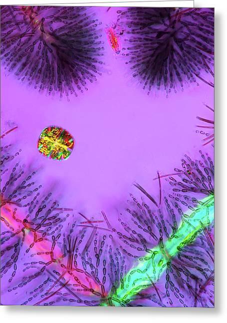 Desmid And Red Algae Greeting Card by Marek Mis