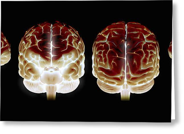 Cerebral Cortex Greeting Cards - The Human Brain Greeting Card by Science Picture Co