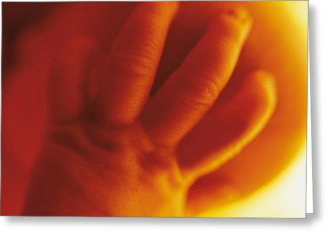 Color Photography Greeting Cards - Untitled Greeting Card by Anne Geddes