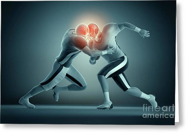 Damaging Thoughts Greeting Cards - Football Collision Greeting Card by Science Picture Co
