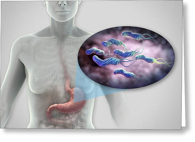 Large Scale Greeting Cards - Helicobacter Pylori Greeting Card by Science Picture Co