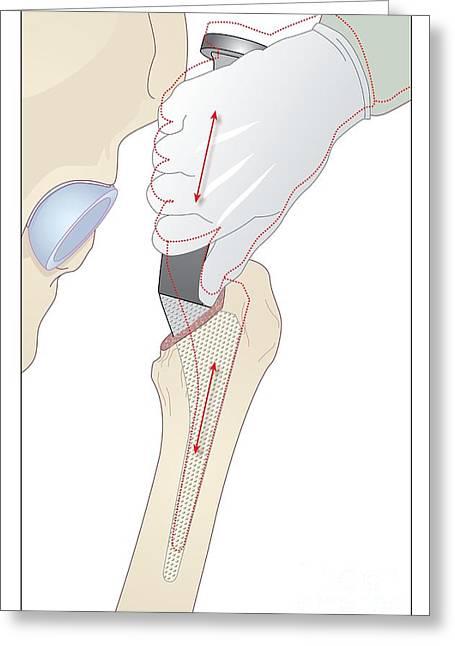 Replacing Greeting Cards - Hip Replacement, Artwork Greeting Card by Peter Gardiner