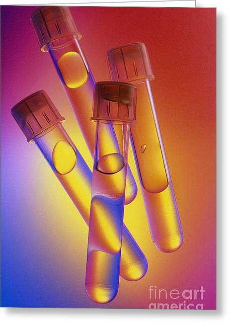 Plastic Solution Greeting Cards - Laboratory Glassware Greeting Card by Charlotte Raymond