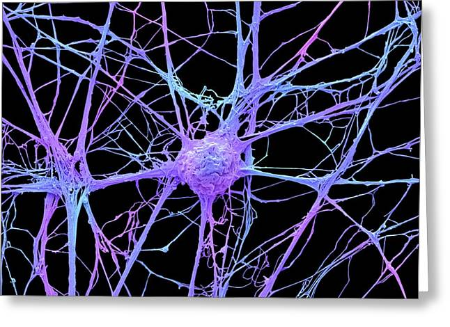 Neurone Greeting Card by Steve Gschmeissner