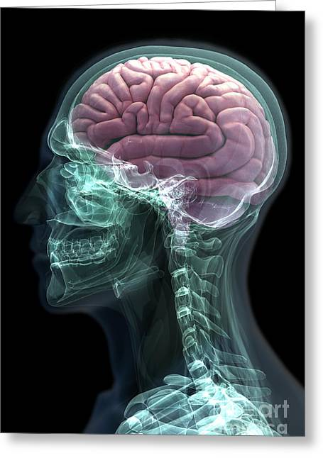 Occipital Greeting Cards - Human Brain Greeting Card by Science Picture Co