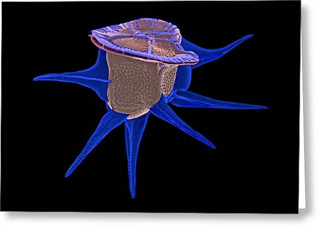 Striae Greeting Cards - Diatom, SEM Greeting Card by Science Photo Library