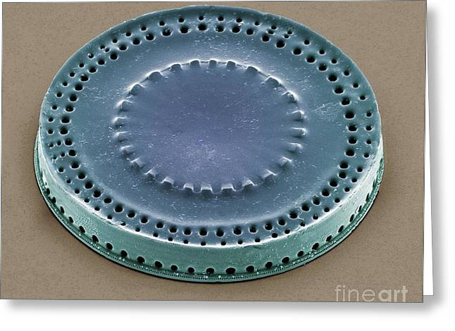 Heterokont Greeting Cards - Diatom, Sem Greeting Card by Steve Gschmeissner