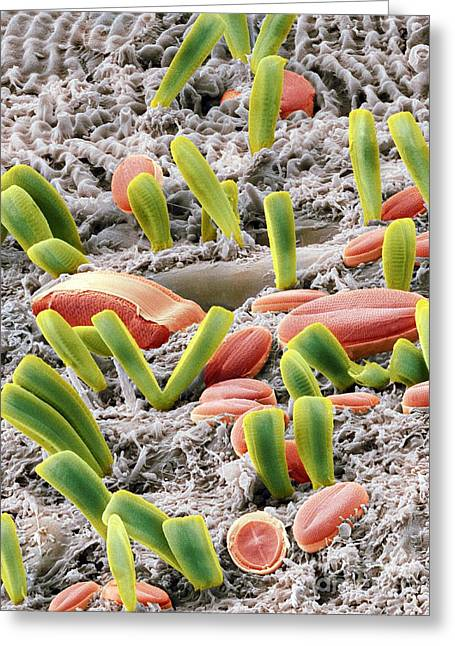 Diatoms Photographs Greeting Cards - Diatoms, Sem Greeting Card by Steve Gschmeissner