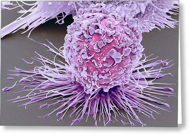Activated Macrophage Greeting Card by Steve Gschmeissner