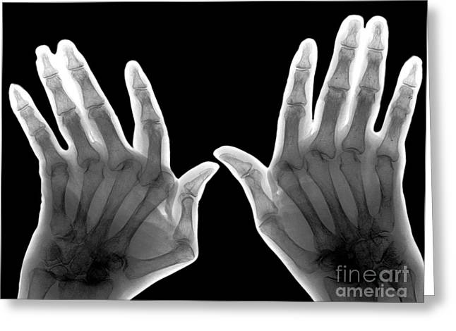 Seventy-two Greeting Cards - Arthritic Hands, X-ray Greeting Card by Zephyr