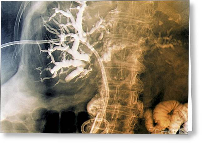Drain Greeting Cards - Biliary Drainage, X-ray Greeting Card by Zephyr