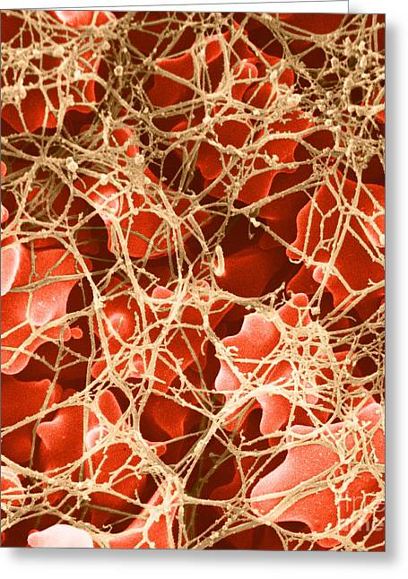 Scanning Electron Micrograph Greeting Cards - Blood Clot Sem, 2 Of 3 Greeting Card by David M. Phillips