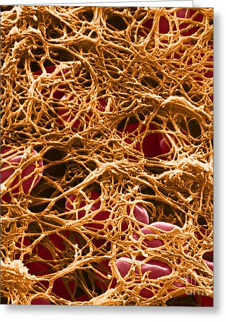 Micrography Greeting Cards - Blood Clot Sem, 3 Of 3 Greeting Card by David M. Phillips