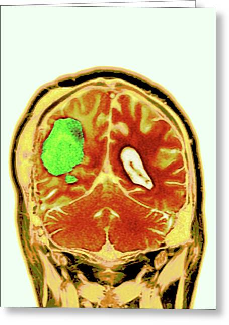 Brain Cancer After Surgery Greeting Card by Dr P. Marazzi