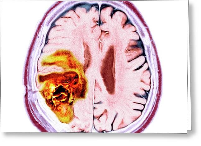 Brain Cancer Greeting Card by Dr P. Marazzi