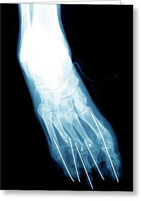 Bunion After Surgery Greeting Card by Zephyr