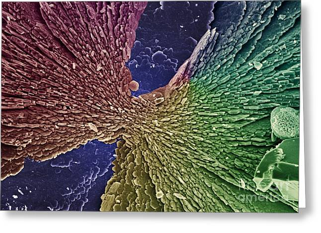 False-colour Greeting Cards - Calcium Carbonate, Sem Greeting Card by Science Photo Library