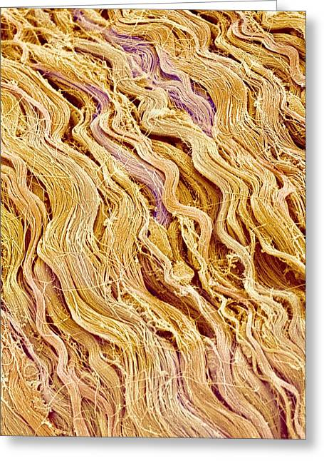 Connective Tissue Greeting Cards - Connective tissue, SEM Greeting Card by Science Photo Library